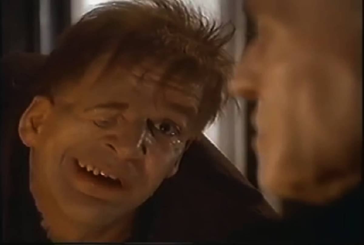 Mandy Patinkin as Quasimodo, 1997 The Hunchback