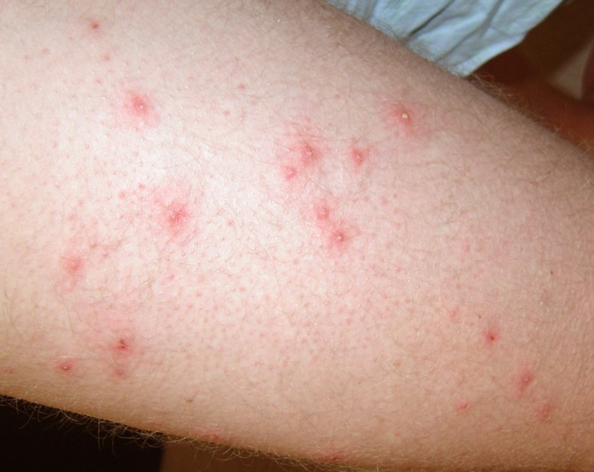 Pseudomonas Folliculitis : A Bacterial Folliculitis That Can Not Be Avoid