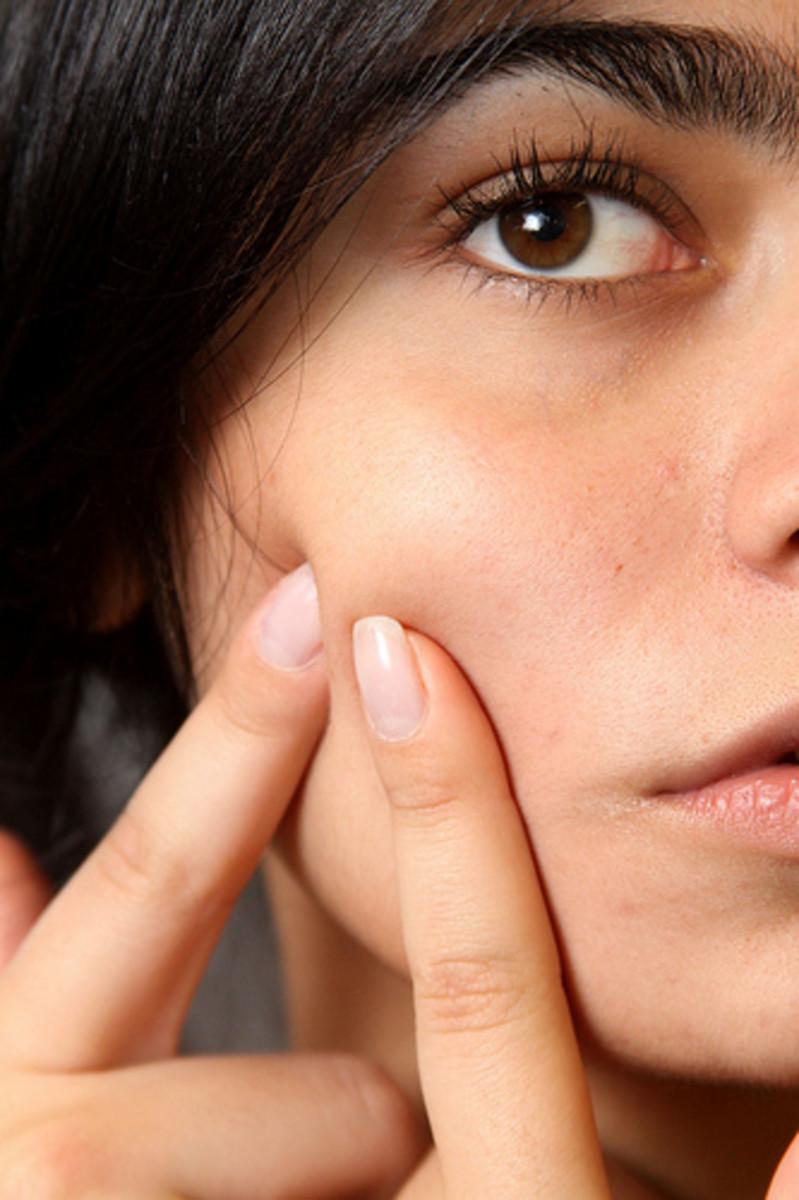 Aloe vera masks can help alleviate acne.