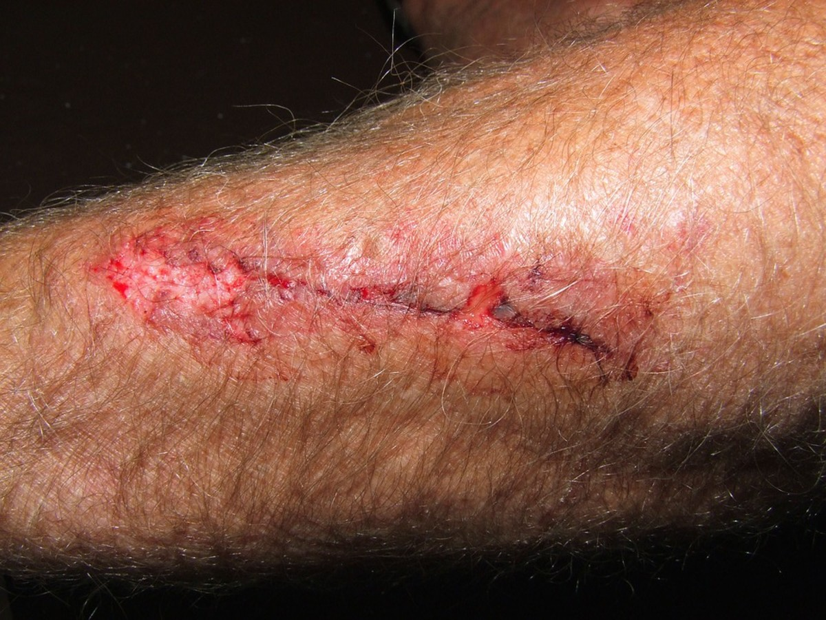 Phases of Wound healing: Hemostasis, Inflammation, Growth of New Tissue and Remodeling