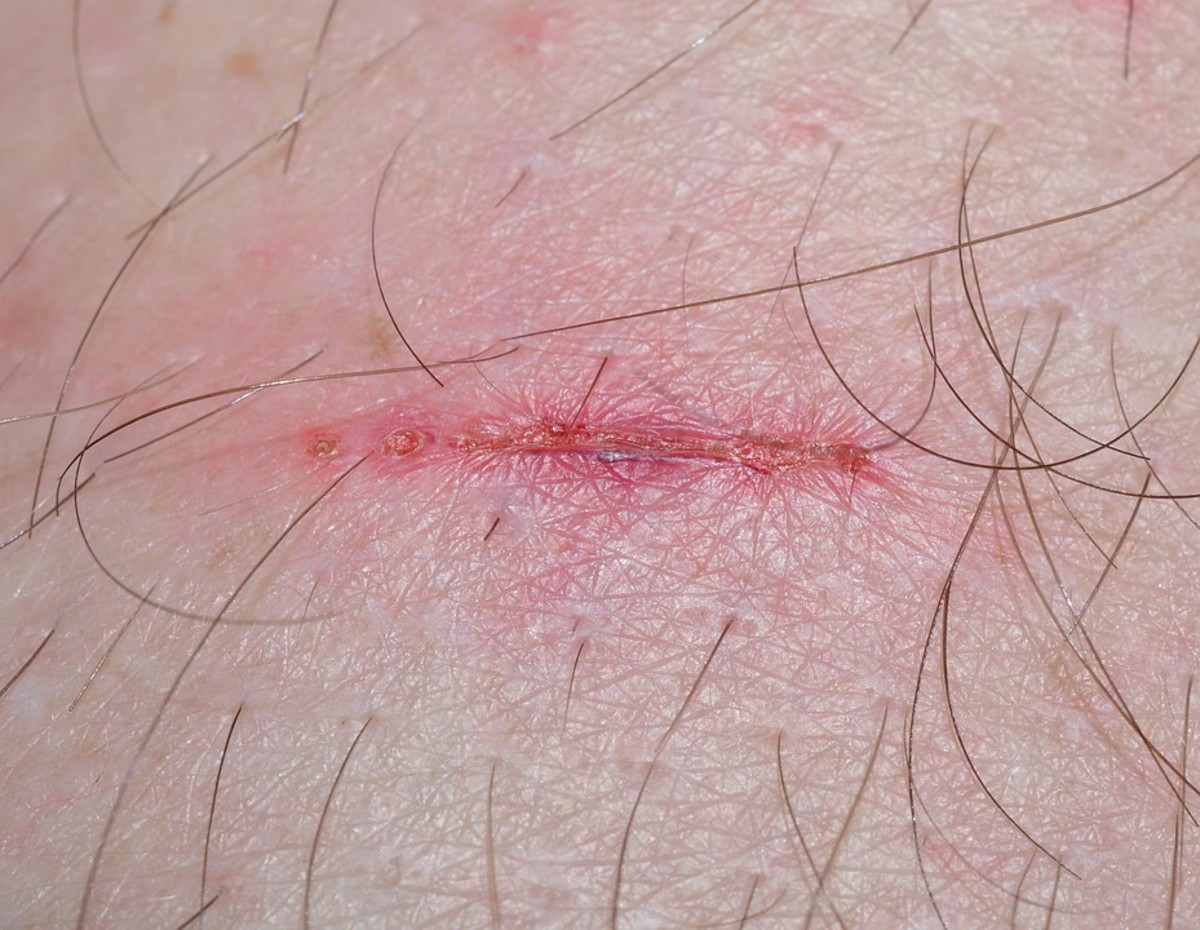 Delays in the Wound Healing Process and Dont Scratch That Itch!