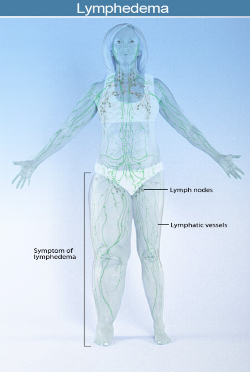 Lymphedema: What it is and how to treat it