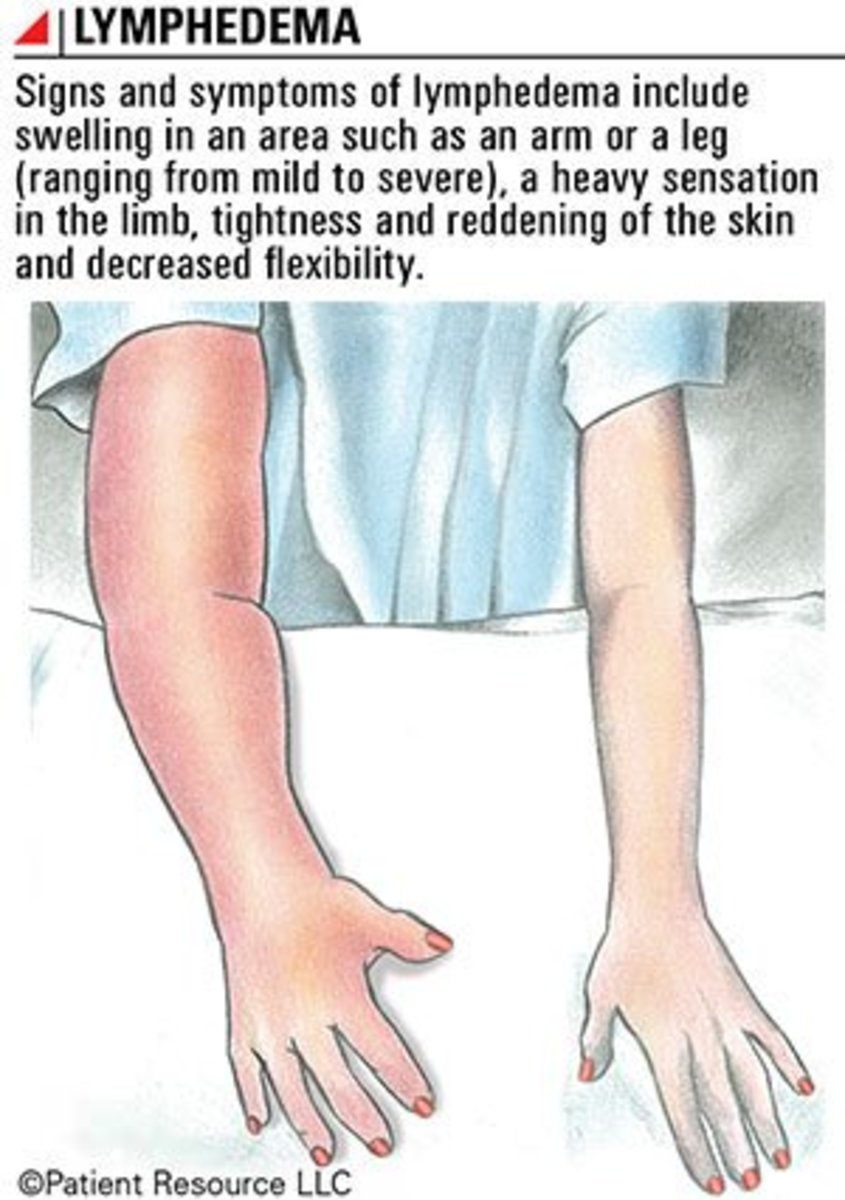 lymphedema-what-it-is-and-how-to-treat-it