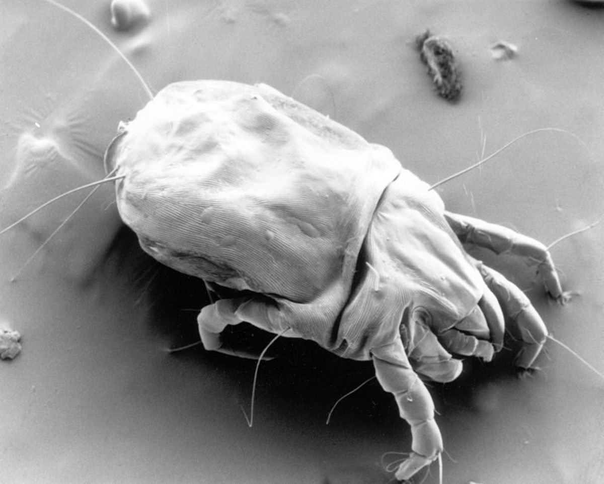 One House Dust Mite under a microscope.