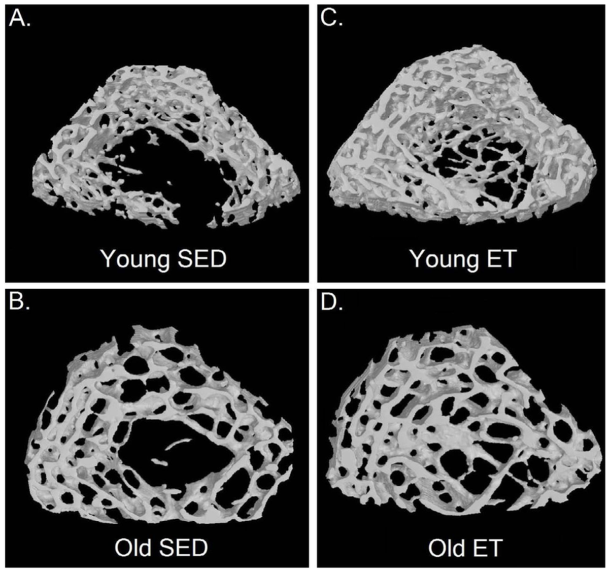 Cross sections of bone belonging to old and young sedentary vs exercise trained individuals