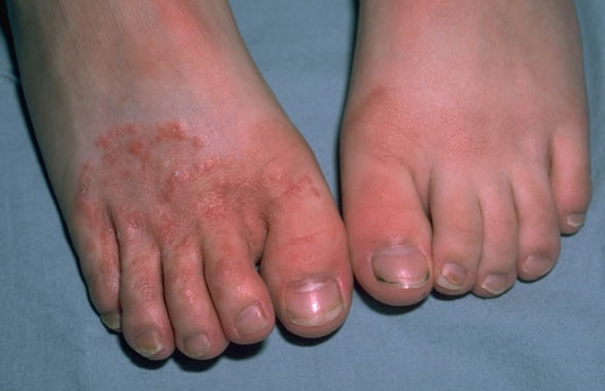 how treat foot fungus