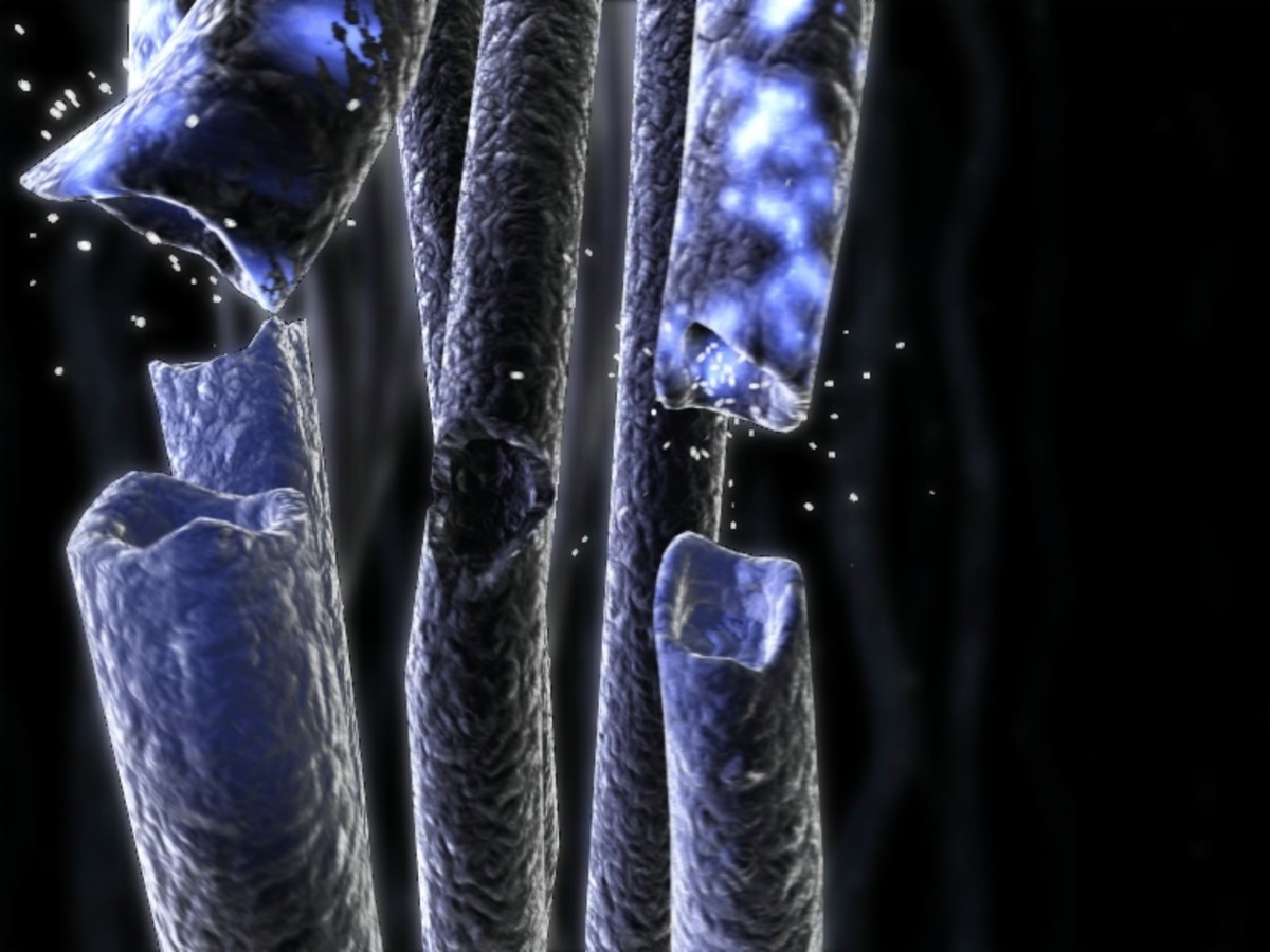Neuropathic pain is caused by damage to nerves throughout the body.