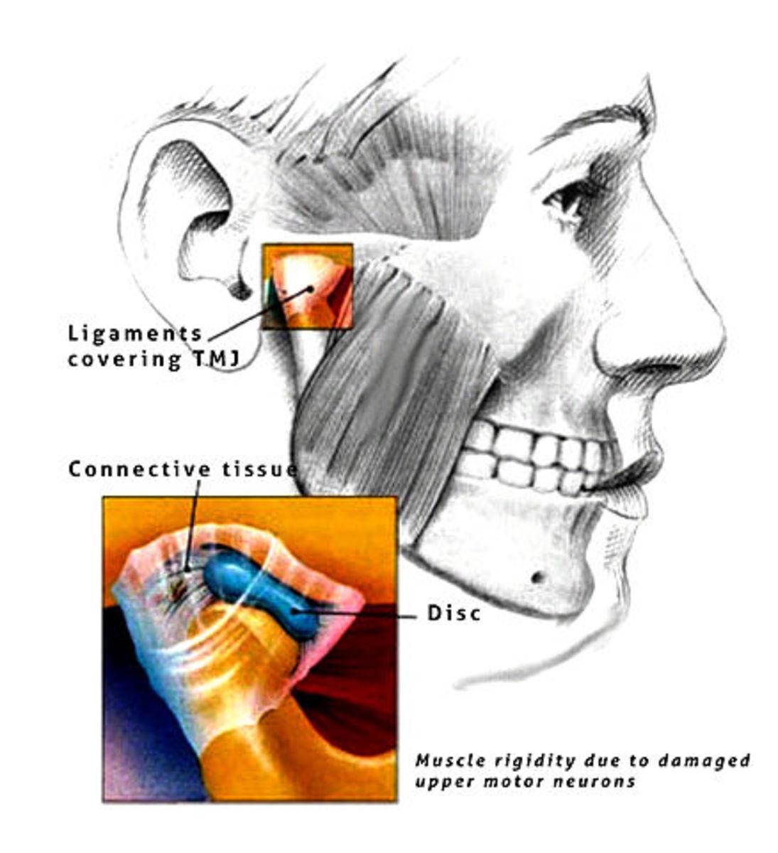 Lock-jaw or trismus