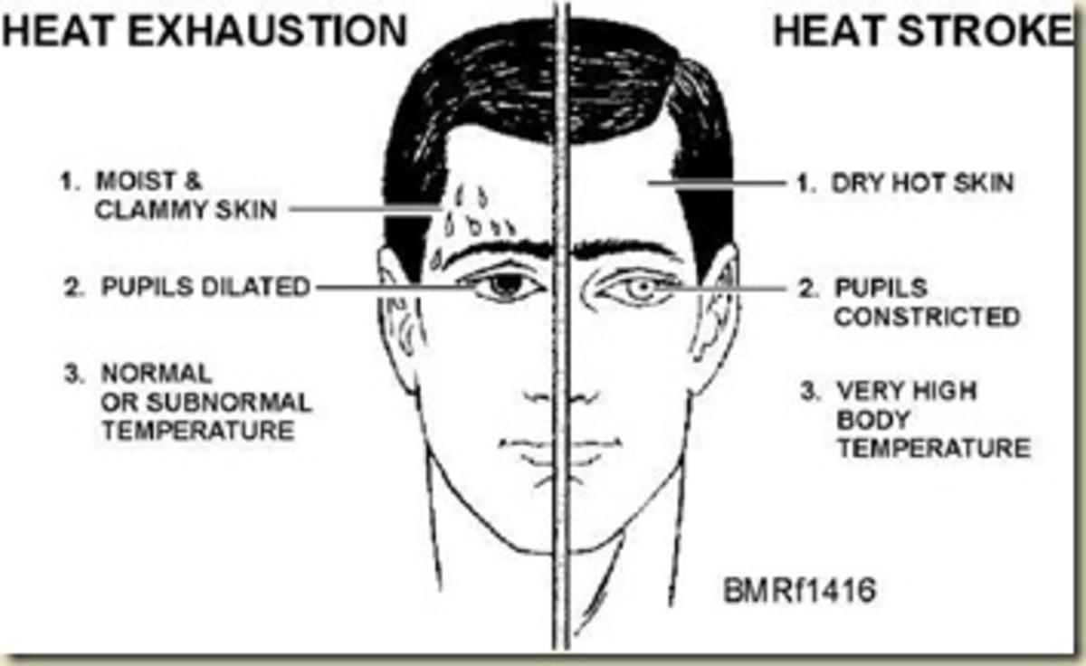 Heat stroke symptoms