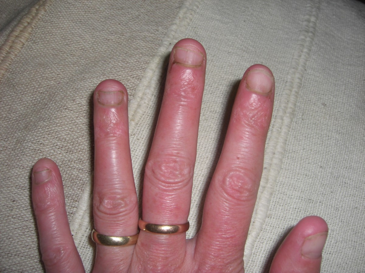 How to Stop Nail Biting Easily | HubPages