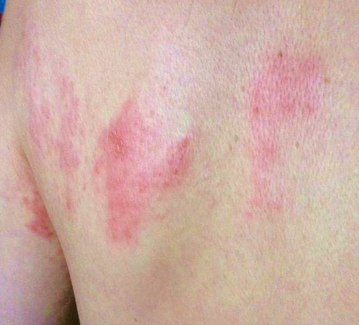 How to Know if You Have Shingles Blisters
