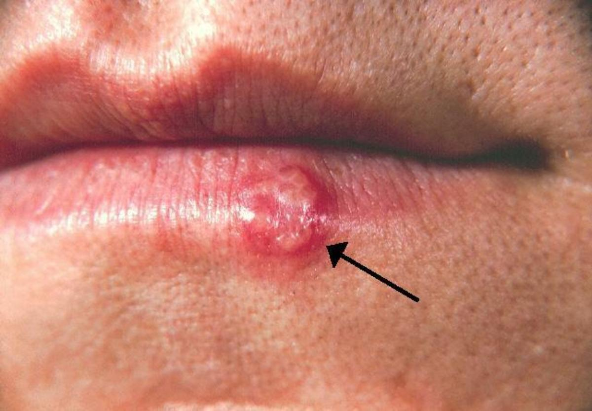 how-do-you-know-if-you-have-shingles