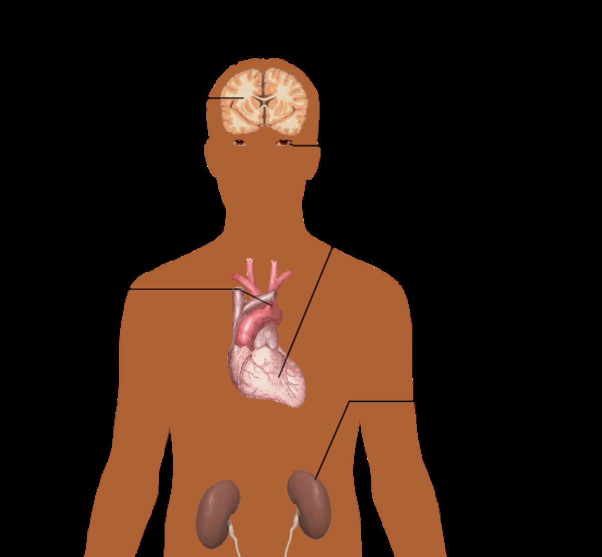 diabetes insipidus memory loss