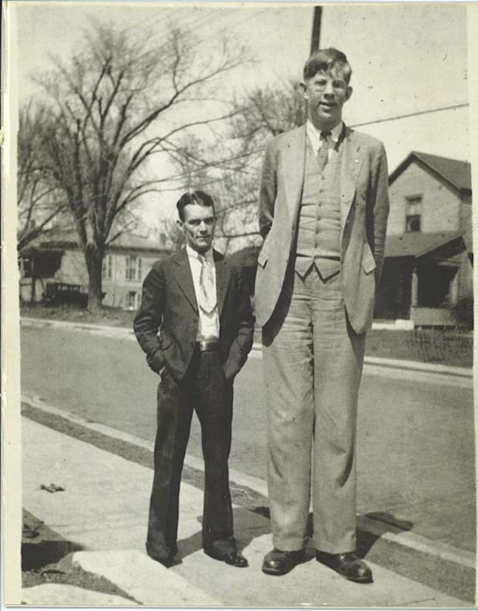 acromegaly - gigantism; the world's tallest human | hubpages, Skeleton
