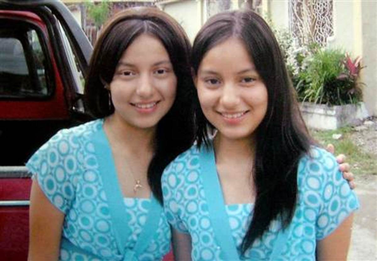 These twins met accidently in their teens in Ecuador.