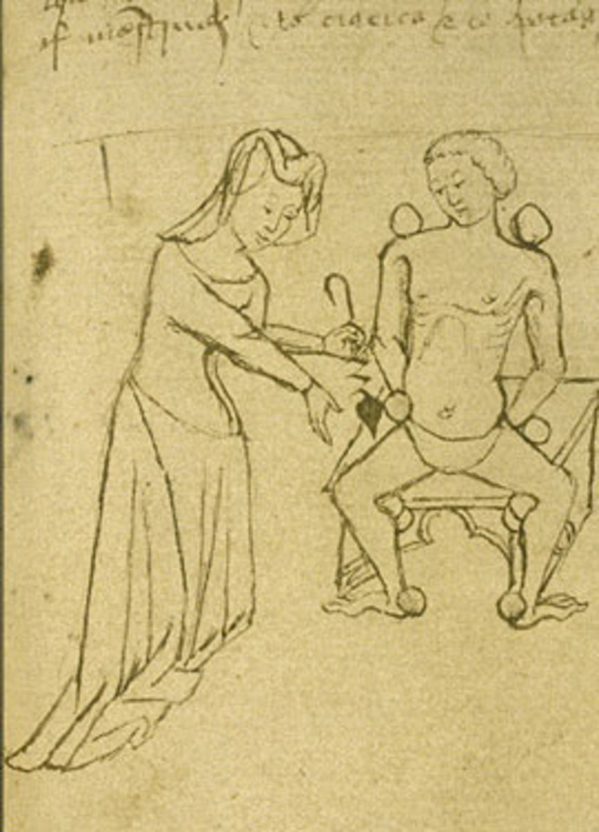 Female physicians often employed blood-letting as a means of curing a patient's ills.
