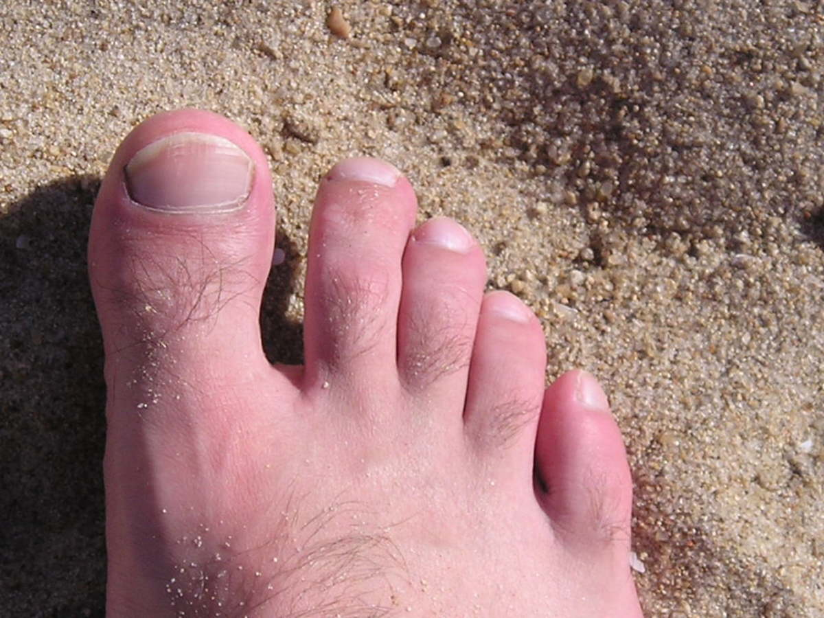 Healthy looking toenails on the beach!