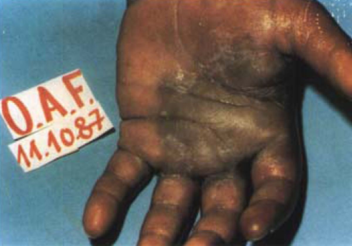 A skin lesion caused by radiation exposure at Goiânia.