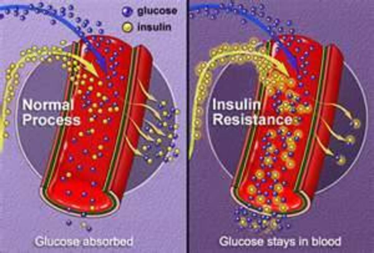 Warning: Dangers of Insulin Resistance