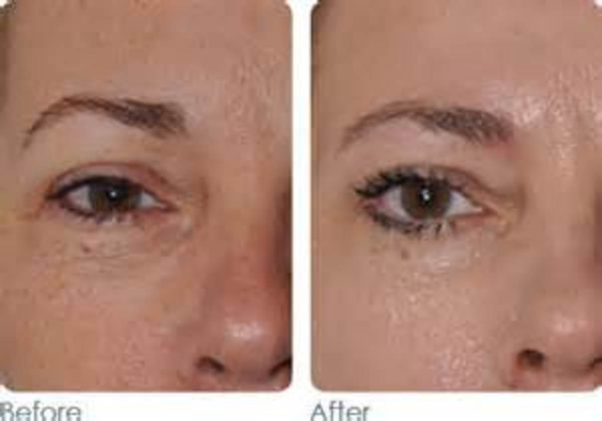 Before and after Roc  Retinol Cream for aging skin.