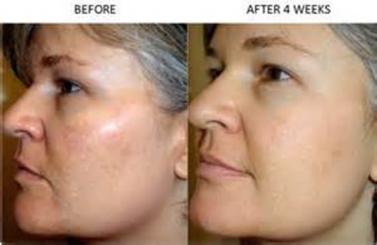 Skin Care four weeks before and after Retin A use