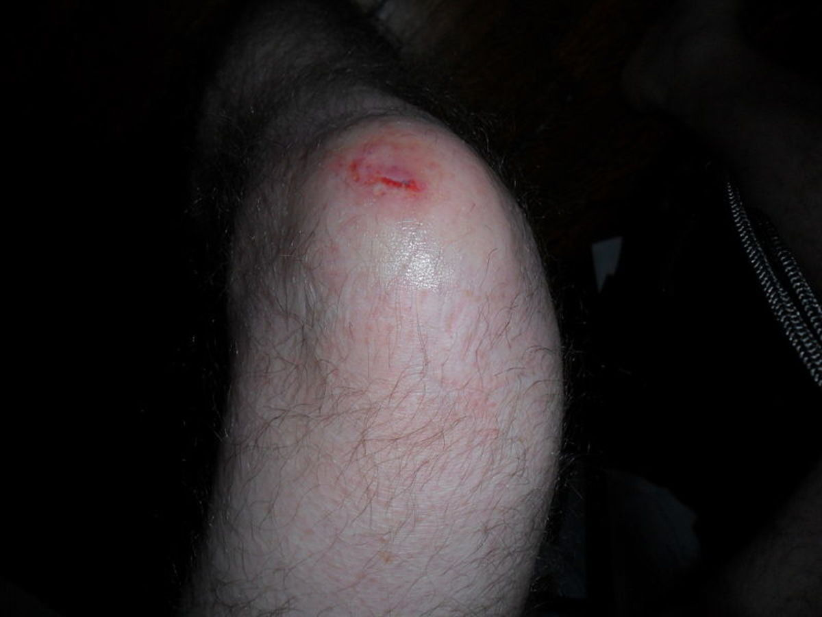 A lacerated knee