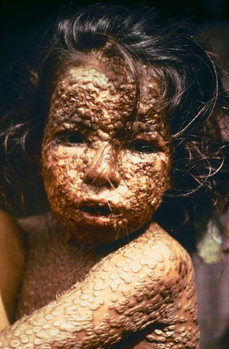 A Bengali girl infected with smallpox in 1973.