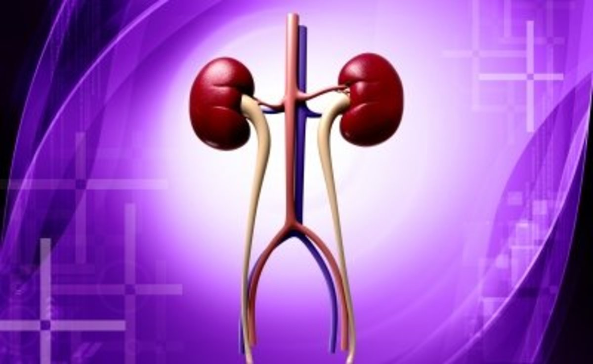 Kidney Stones - Symptoms, Types, Prevention and Foods to Avoid
