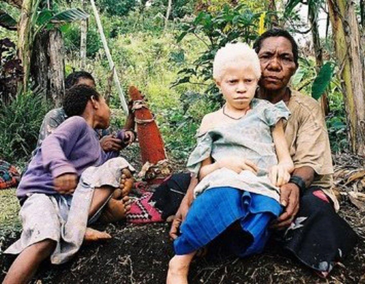 An albino girl from Papua New Guinea
