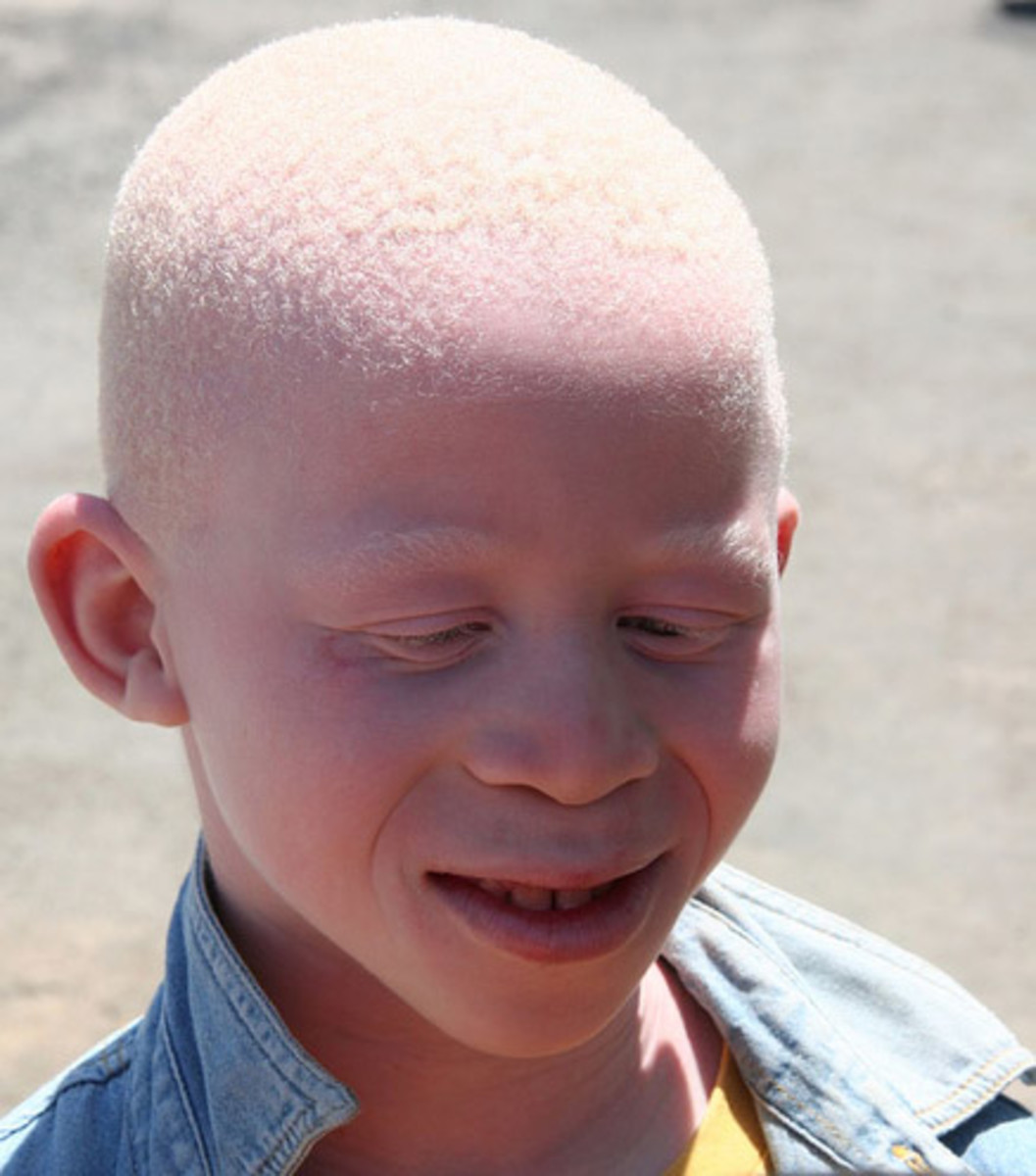 albinism-the-fear-and-threats