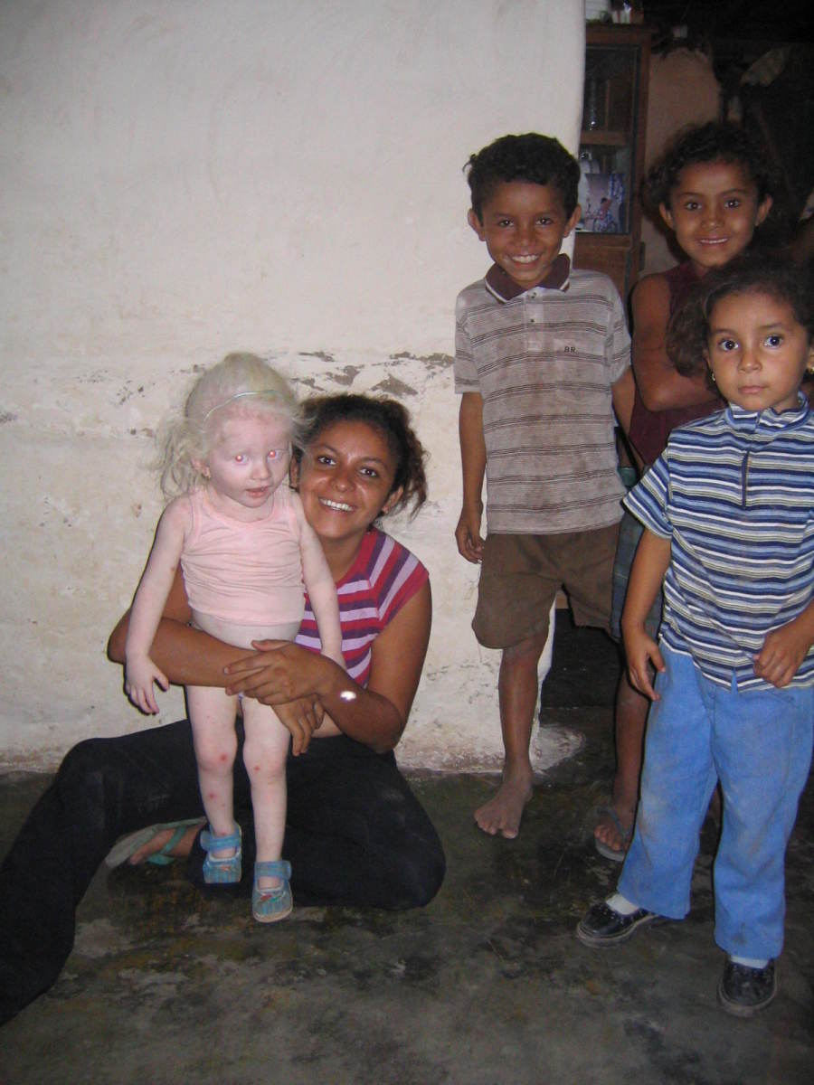 An albino girl in Honduras
