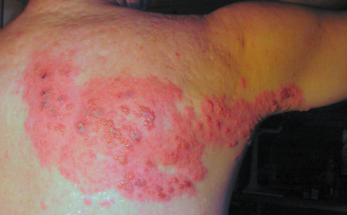 Herpes zoster image