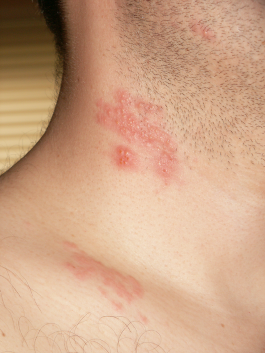 Shingles can appear as a rash on the neck