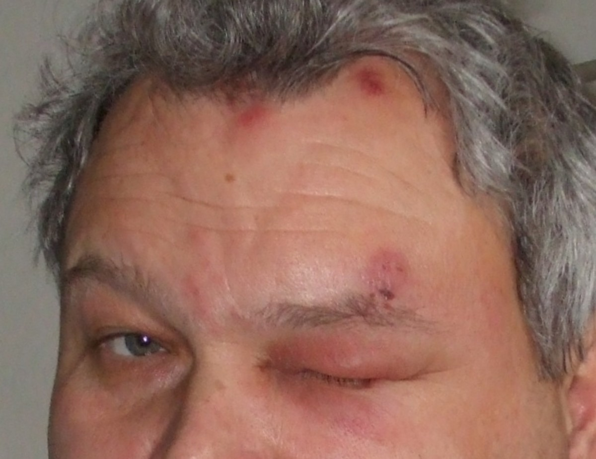 Shingles around the area of the eye is serious