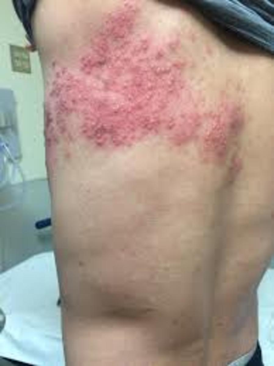 Photo of Rash in Shingles
