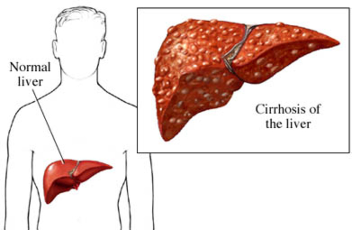 Cirrhosis of the liver