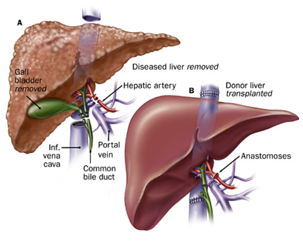 Diseased liver removed and donor's liver transplanted
