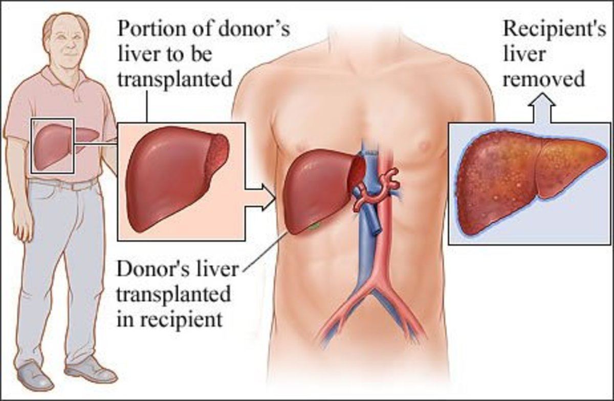 Portion of donor's liver removed and implanted into the recipient's body