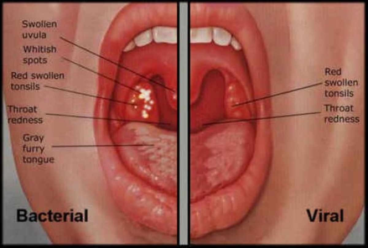 Difference between bacterial and viral sore throat