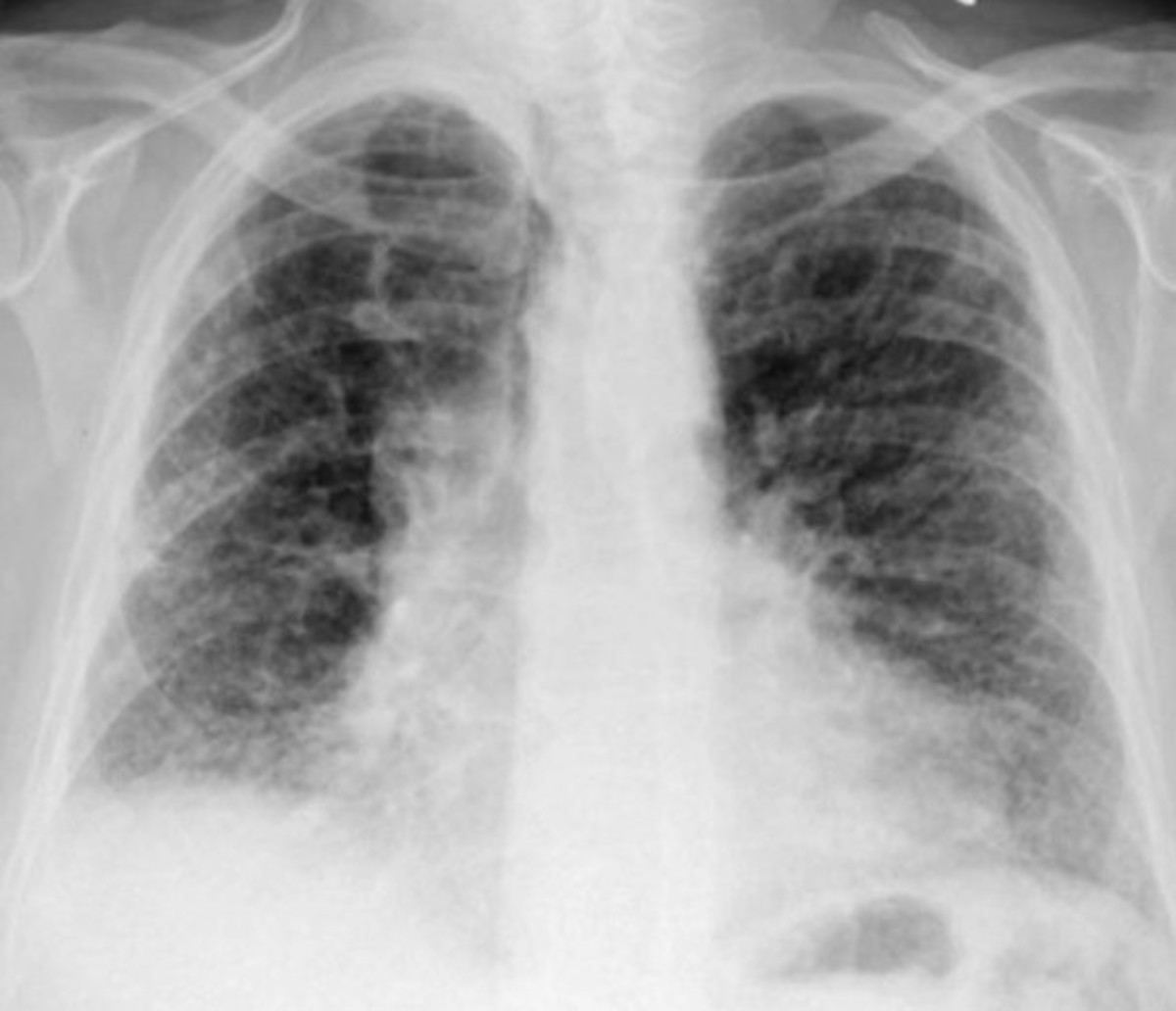 Interstitial lung disease - Life Expectancy, Prognosis, Treatment, Symptoms, Causes