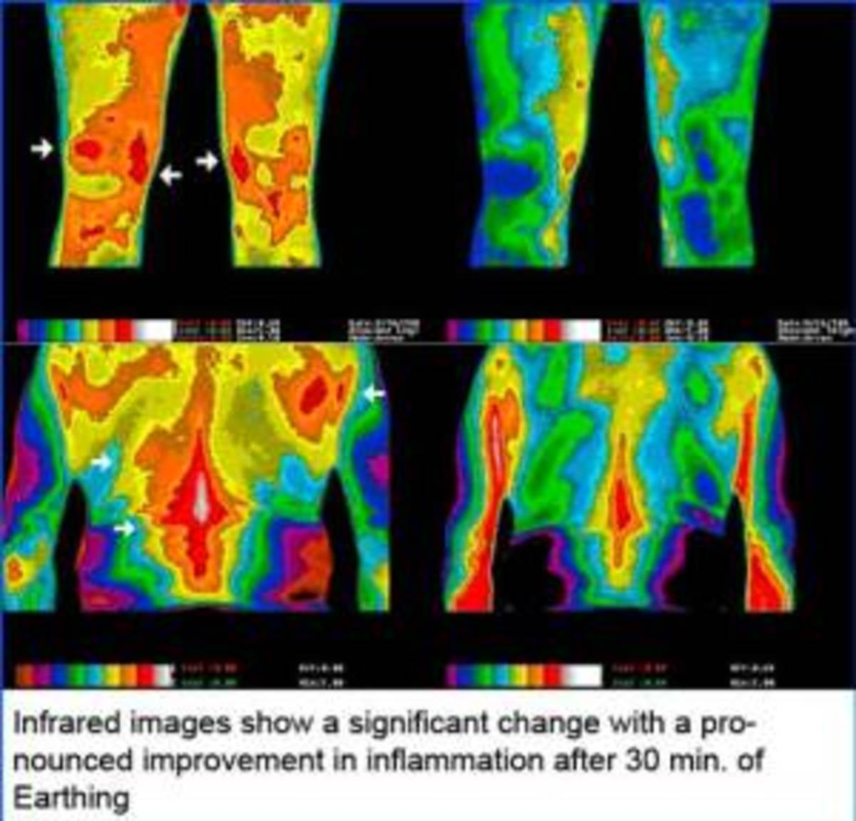 Infrared images show a significant change with a pronounced improvement of inflammation after 30 minutes of earthing.