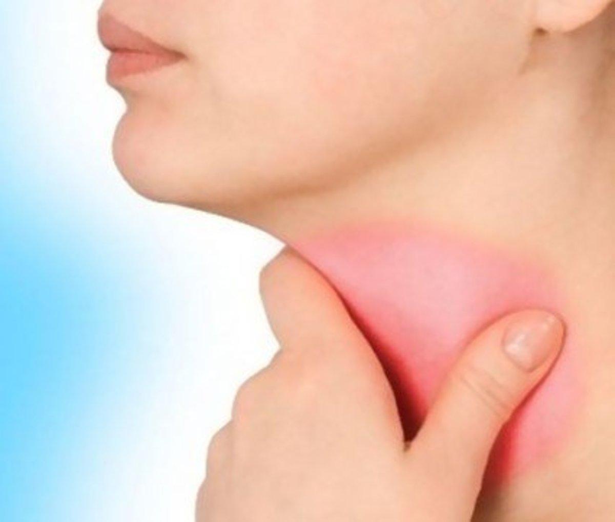 sore-throat-and-swollen-glands