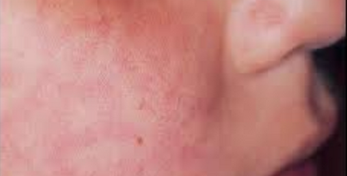 Hiv rashes pictures face