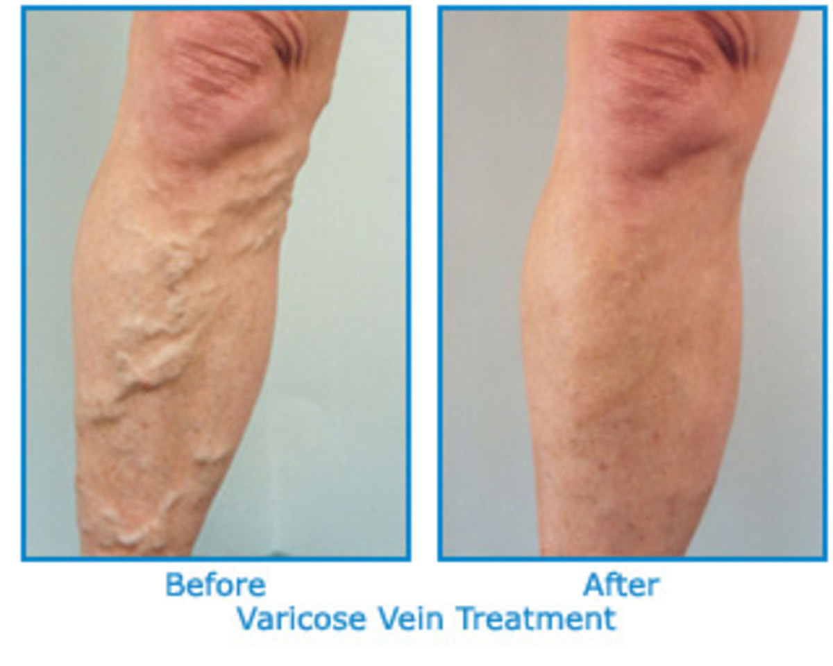 Six exercises to prevent varicose veins