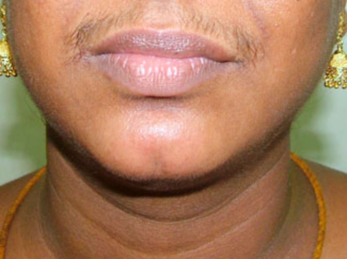 Using razor can increase the hair growth as well their strengthen its texture. Check this row of upperlips hair which is dense, thick and notably black.