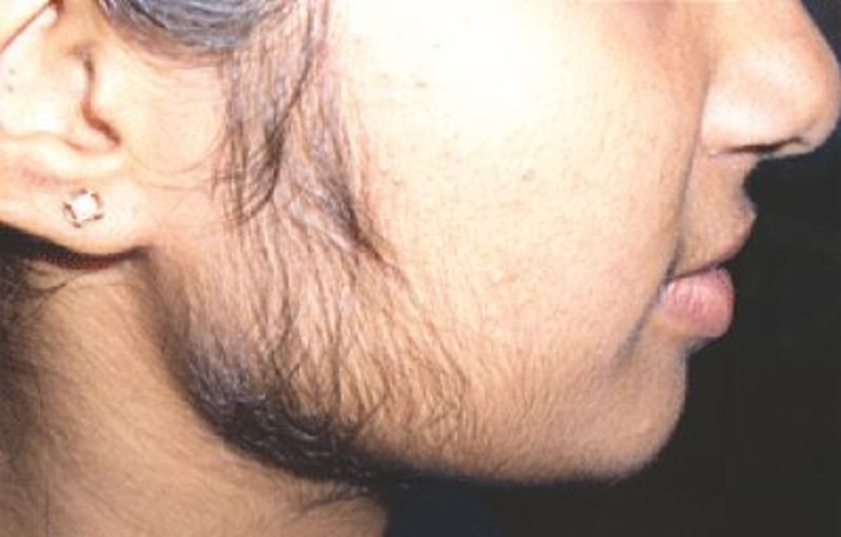 Excessive hair on face.The hair is hormonal because it's been grown in a massive amount on the sideburns.