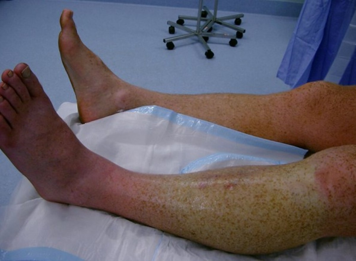 compartment syndrome - pictures, treatment, causes, surgery | hubpages, Skeleton