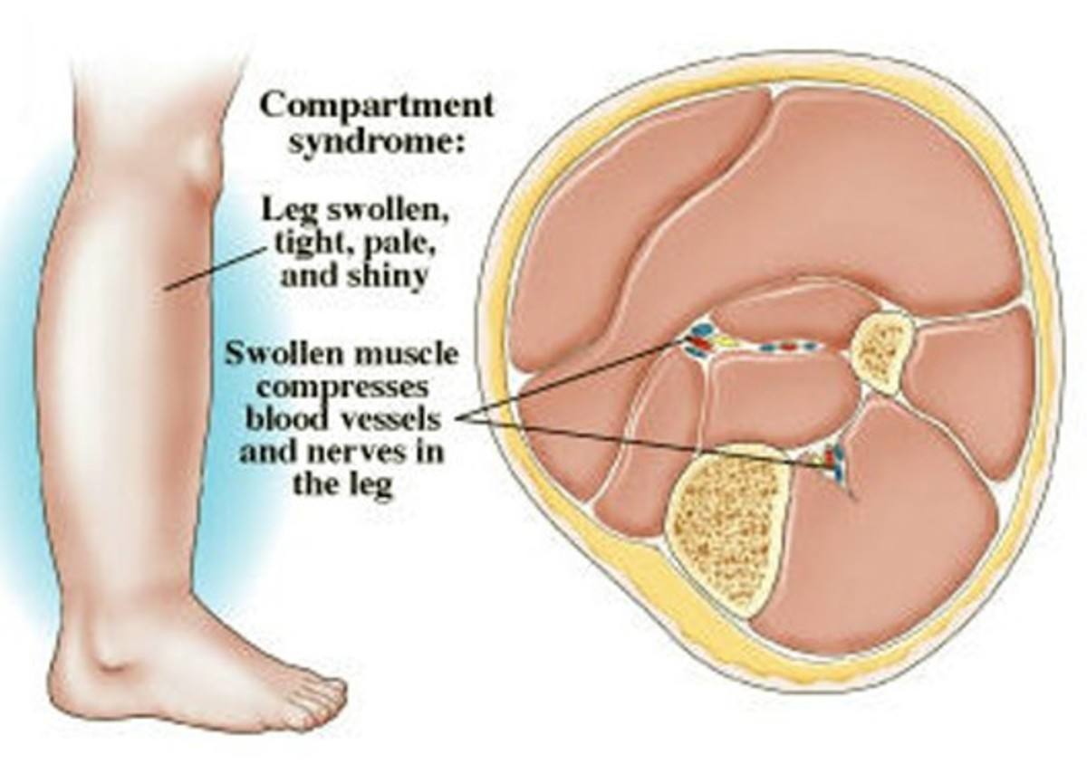 Compartment Syndrome - Pictures, Treatment, Causes, Surgery