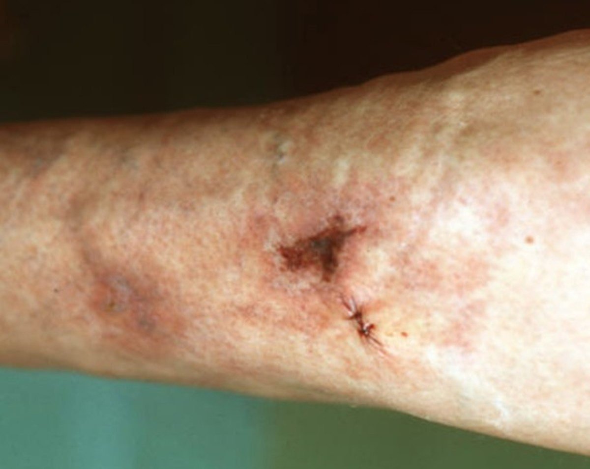 calciphylaxis pictures symptoms diagnosis treatment