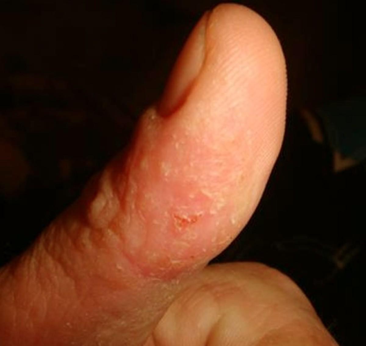 contact-dermatitis-pictures-symptoms-causes-treatment